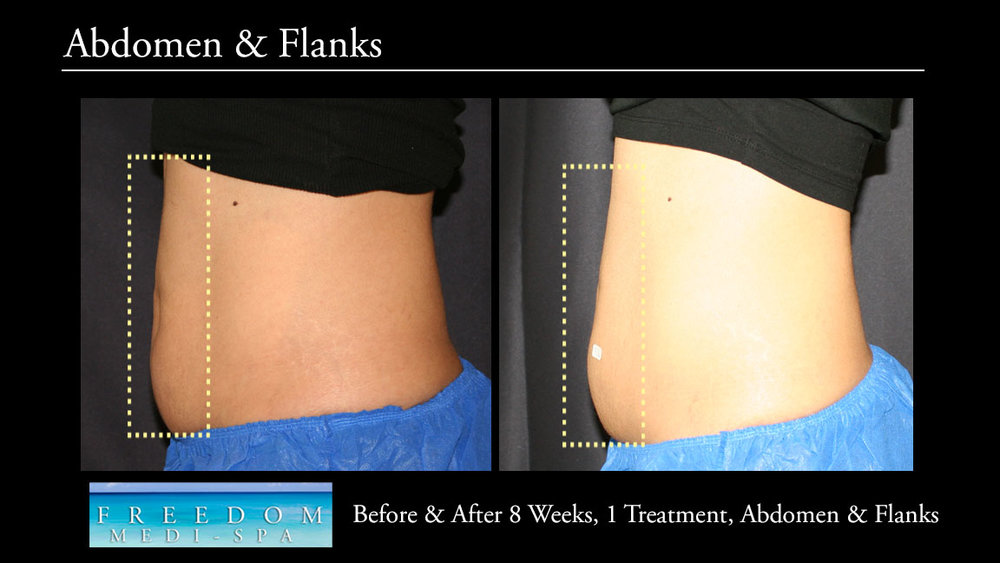 SculpSure Abs Flanks Sept 2017.jpg