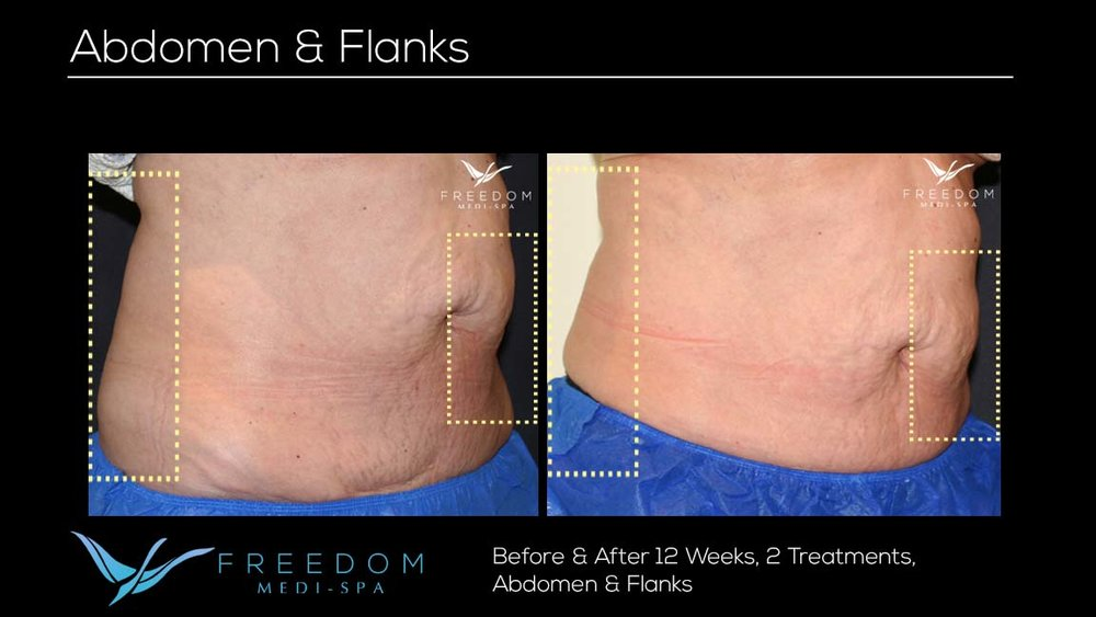 SculpSure Abs Flanks Oct 2017 re-branded.jpg