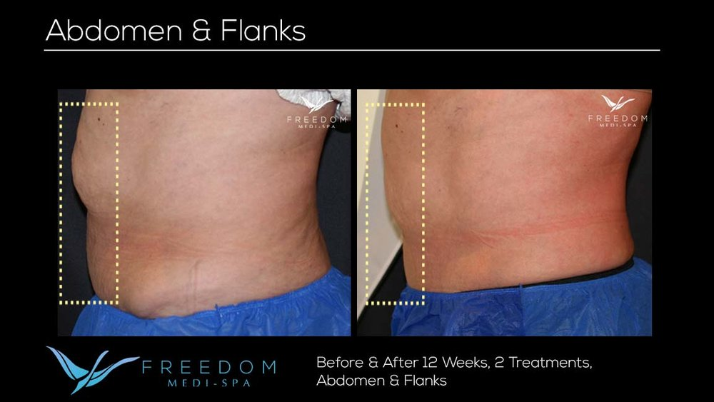 SculpSure Abs Flanks Oct 2017 2 re-branded.jpg