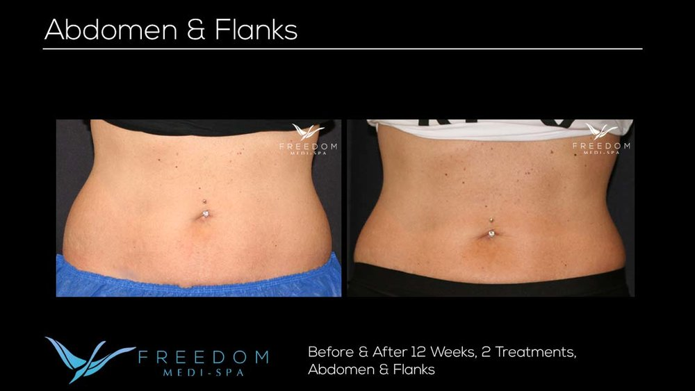 SculpSure Abs Flanks Oct 2017 3 re-branded.jpg