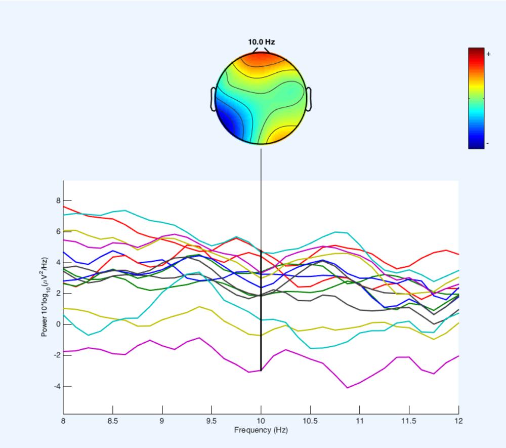 Before Patient EEG Example .png