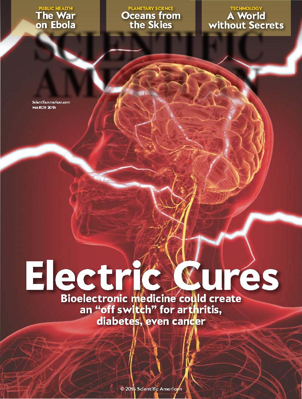 Electric Stim American Brain Stimulation Clinic Truemind
