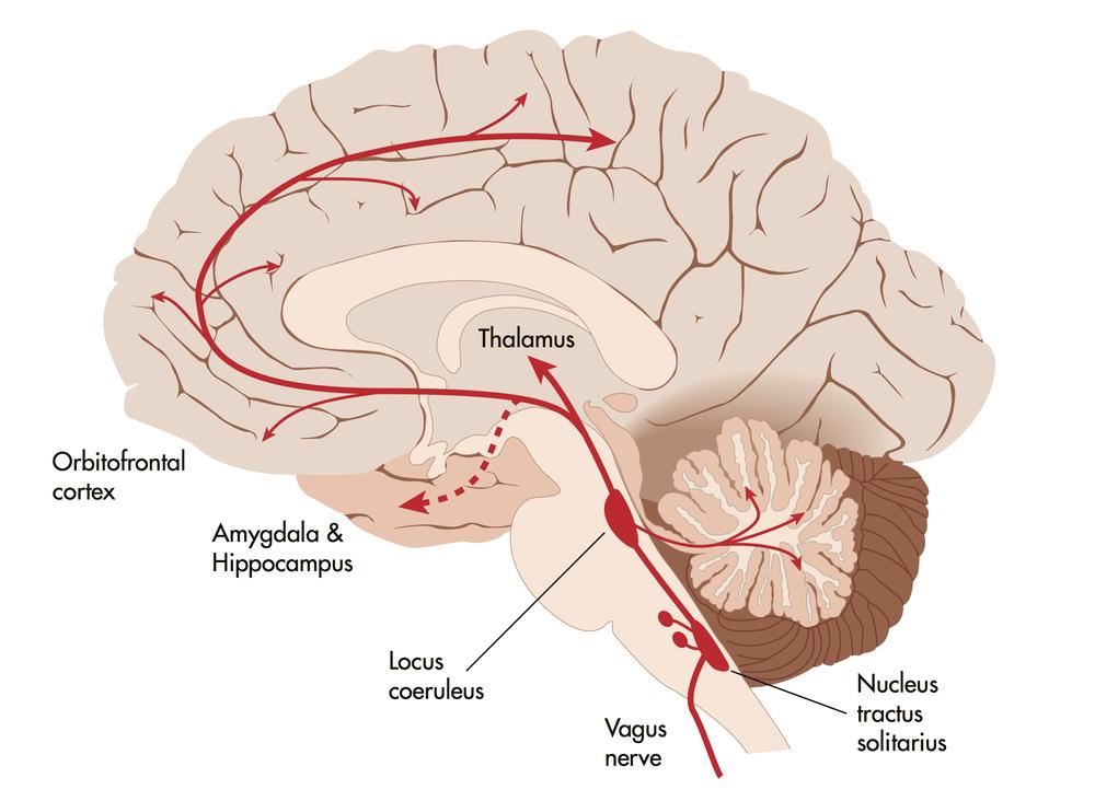 vagus tvns american brain stimulation clinic truemind