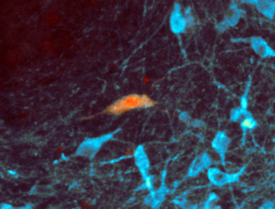 Dopamine neurons in the ventral tegmental area stained with anti-tyrosine hydroxylase antibody (blue). The orange neuron has been filled with neurobiotin during an electrophysiological recording.