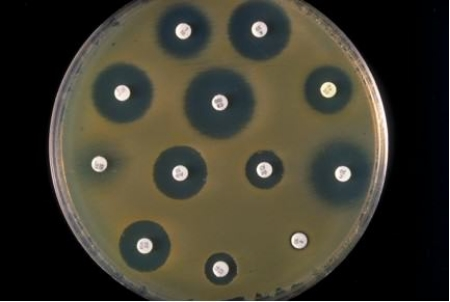 "Demonstrating antibiotic activity. A petri dish culture of bacteria (brown haze) growing on agar media topped with small white discs which are filter papers impregnated with samples of other bacterial species or purified small molecule products. Antibiotic activity is shown by the appearance of a ""halo"" of no bacterial growth around the source of ""killing activity"". The size/diameter of the ""zone of death"" indicates strength of activity."