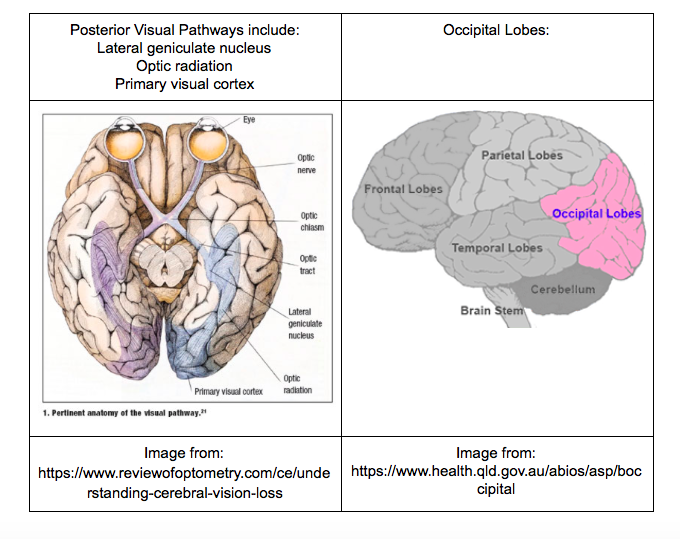 Image from: https://www.reviewofoptometry.com/ce/understanding-cerebral-vision-loss  Image from:https://www.health.qld.gov.au/abios/asp/boccipital