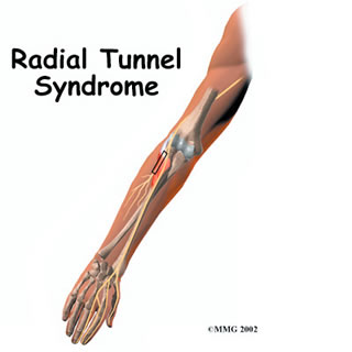 Dallas Radial Tunnel Syndrome Treatment