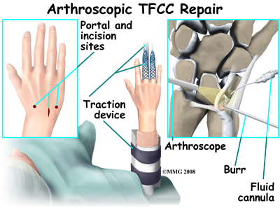 TFCC Tear Repair Dallas