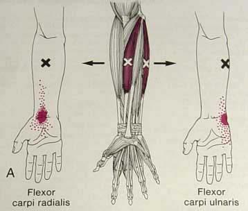 Wrist Tendonitis Treatment in Dallas