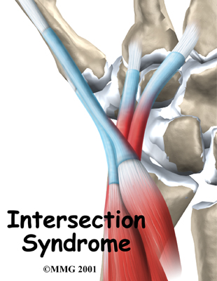 Intersection Syndrome Tendonitis Treatment in Dallas, TX