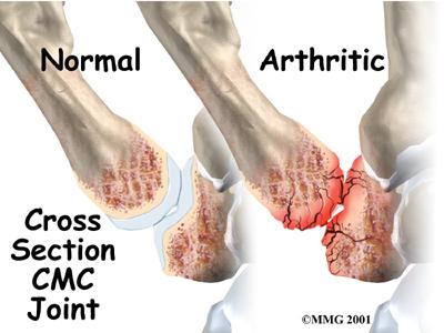 Thumb Basilar Arthritis Specialist Dallas