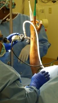 Dr. Pedro Loredo, performing a wrist arthroscopy for wrist pain.