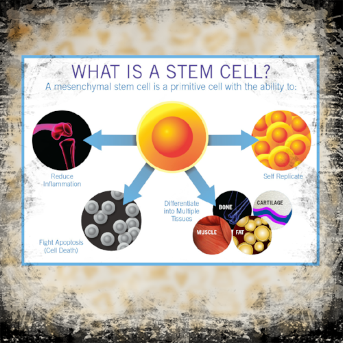Dr. Pedro Loredo uses your own stem cells to help treat your joint pain and injury.  Please call at 972-939-4974 or visit our website www.loredohands.com