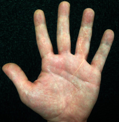 A cut left ring finger, the real origin of AGRAPH 3