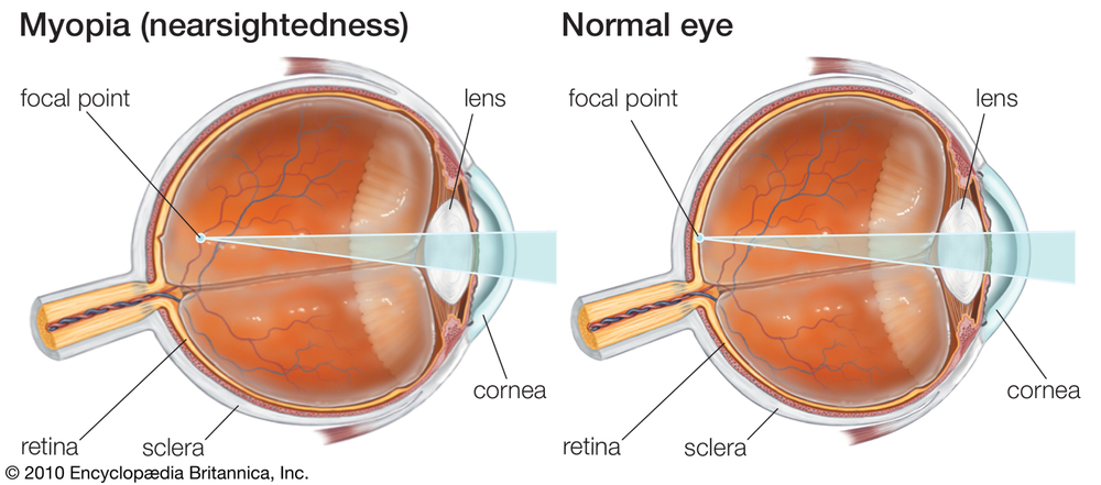 Our eyes must be in focus for us to see accurately, just as a camera must be in focus to obtain a clear picture. Light, which gives us vision, is focused largely by the eye's front surface or cornea.