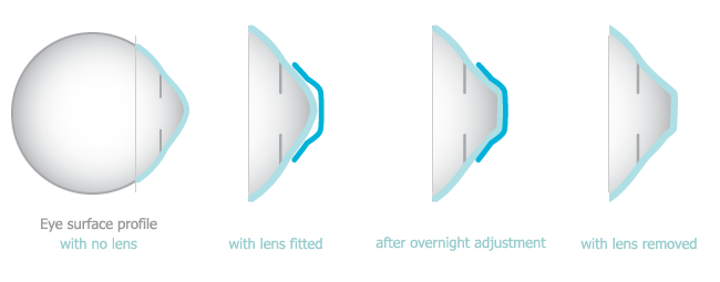 Ortho-K gently moulds or focuses the cornea while a person is sleeping, creating a sharpened image when they wake. Dr. Fenn can design the Ortho-K mould to obtain the change needed to achieve clearly focused vision. When the lens is removed in the morning the cornea begins to return to its original shape but so slowly that good vision is maintained all waking hours.