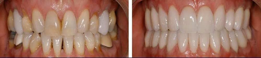 before and after cerec.jpg