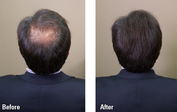 Hair-Fibers-before-and-after2.jpg