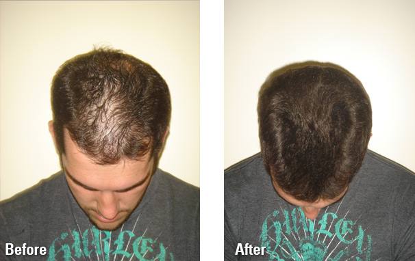Hair-Fibers-before-and-after3.jpg