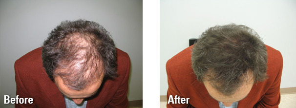 hair-fibers-before-and-after6.jpg