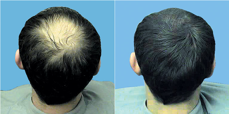 Hair Loss Treatments Kent u203a Kent u0026amp; Essex / Brentwood u0026amp; Sevenoaks ...