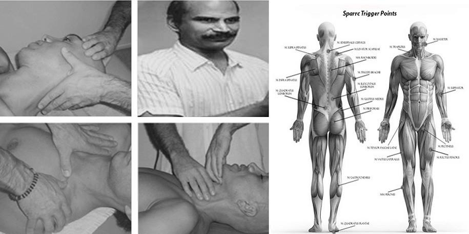 Trigger-Point-myofascial By Muthu.G (Own work) [CC BY-SA 4.0 (https://creativecommons.org/licenses/by-sa/4.0)], via Wikimedia Commons