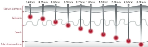 dermaroller needle sizes http://dermarollerqmd.com/wp-content/uploads/2016/02/dermaroller-needle-sizes.jpg