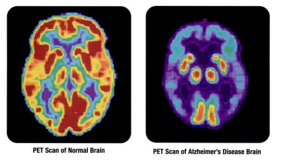 By Health and Human Services Department, National Institutes of Health, National Institute on Aging : p.24[1] (Alzheimer's Disease: Unraveling the Mystery) [Public domain], via Wikimedia Commons