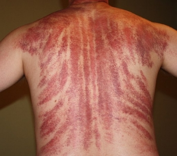 This image shows the results of an intense Gua Sha body treatment.  Attribute: Apparently my Chi wasn't up to par.   August 2009  by   Bradwesley69