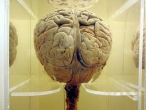 Brain (640x480)