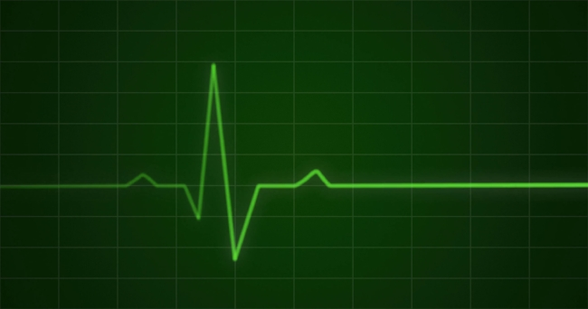 concept-animation-of-an-ecg-or-ekg-heartbeat-cardiogram-on-a-green-monitor-in-4k_4nki2zf8g__F0000.jpg