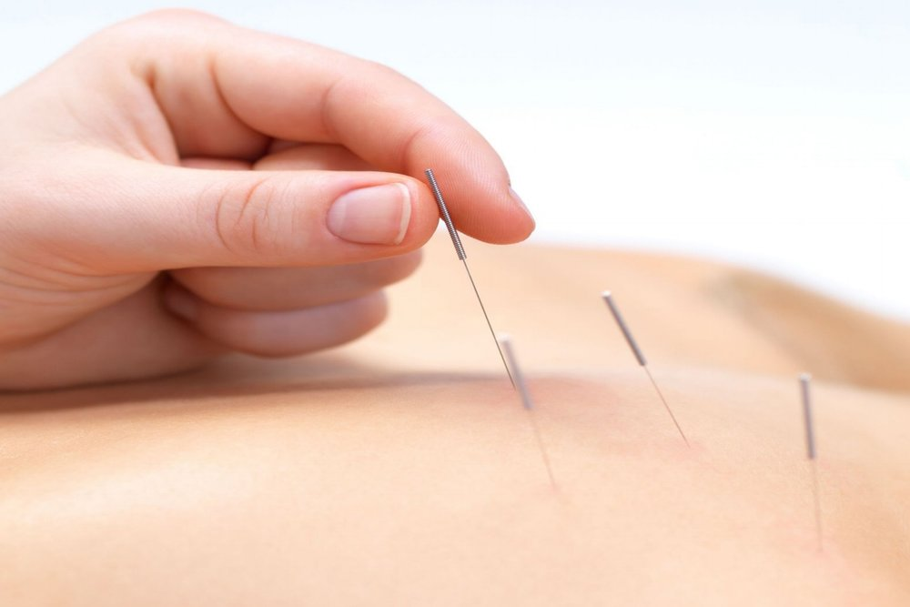 Acupuncture - Takes off from where Western Medicine fails