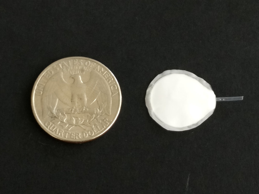 A coin-sized, semipermeable pouch is key to the proposed implant. The pouch allows cells inside to thrive and release insulin, the researchers say, while protecting the cells from immune rejection.  Courtesy of Encellin
