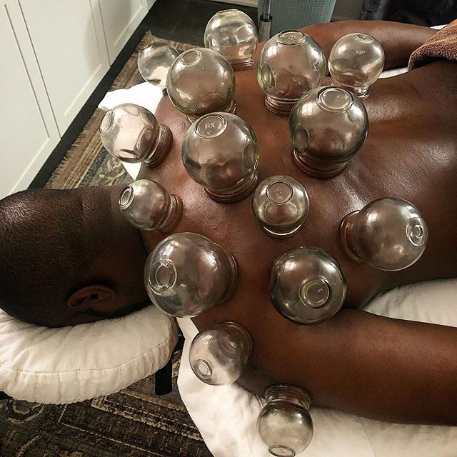 Nothing like some cupping on the upper back to release tension and fascial adhesions. 🤤 This helps with neck pain, shoulder pain, tension headaches, wrist pain and arm numbness, as well as upper respiratory infections and congestion. If you haven't tried cupping yet, you're missing out my friend!  #acupuncture #sportsmedicine #shoulder #neck #back #pain #firecupping #denver
