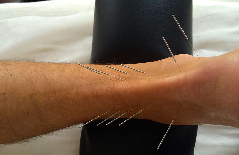Sports Medicine Acupuncture® - SMAc combines Western sports therapy postural assessments and muscle balancing testing with the effectiveness of Traditional Chinese Medicine to differentiate and treat many muscular skeletal injuries and pain conditions.