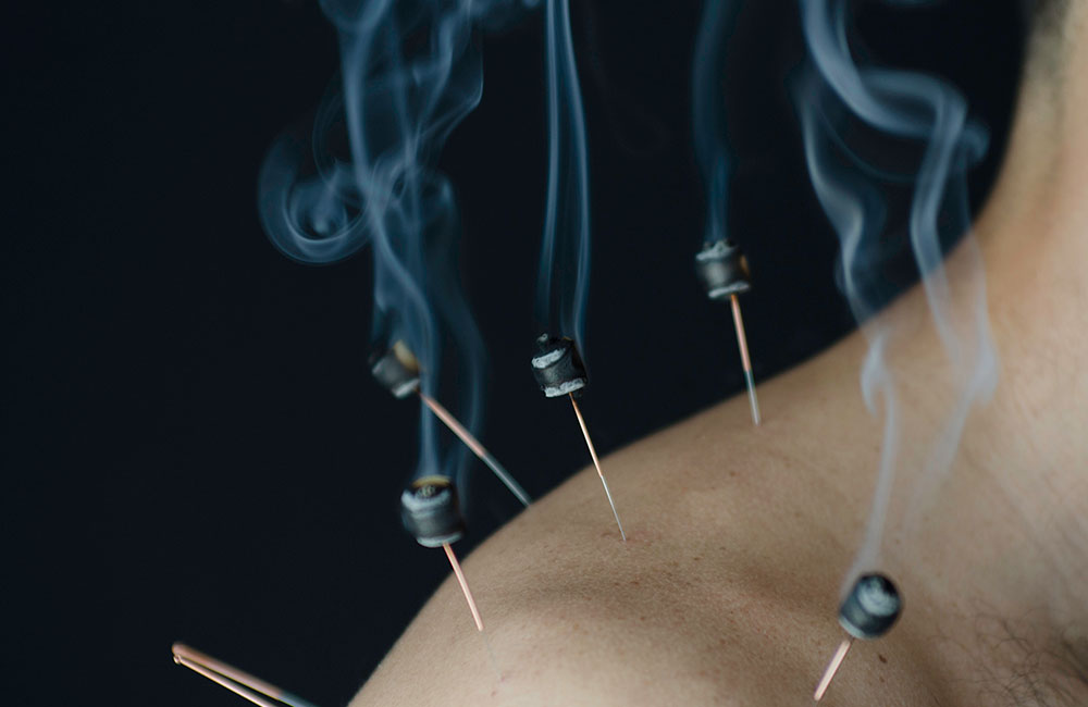 """Moxibustion - Otherwise known as """"moxa"""" is a form of heat therapy that uses the Chinese herb, Artemisia Argyi, or """"mugwort"""", which is applied to certain acupuncture points to treat and prevent diseases. Clinically, it is an excellent tool for enhancing the immune system, warming muscles, and relieving pain."""