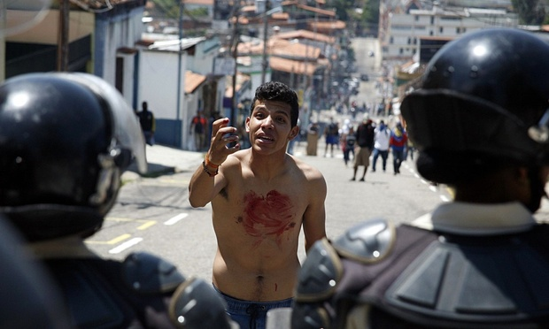 A boy with blood on his body in front of police after a 14-year-old student was shot during a protest in San Cristóbal. Photo credit: Reuters