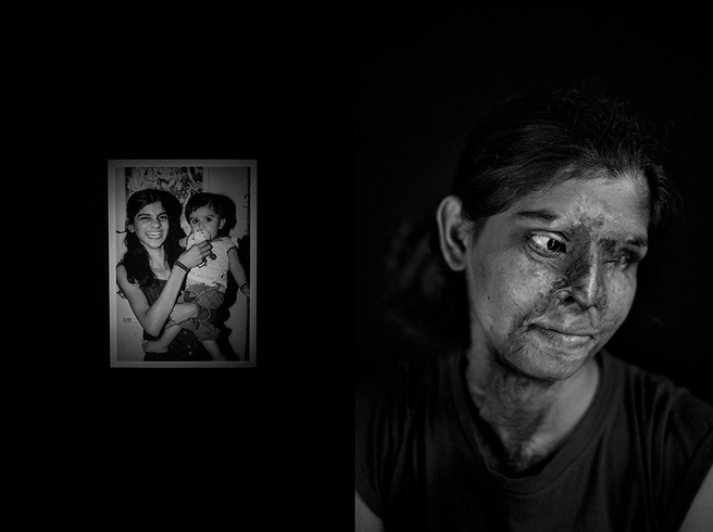This photograph portrays the disfiguring effect of acid attacks. The picture on the left represents the Indian girl prior the attack whereas the second portrays the aftermath.