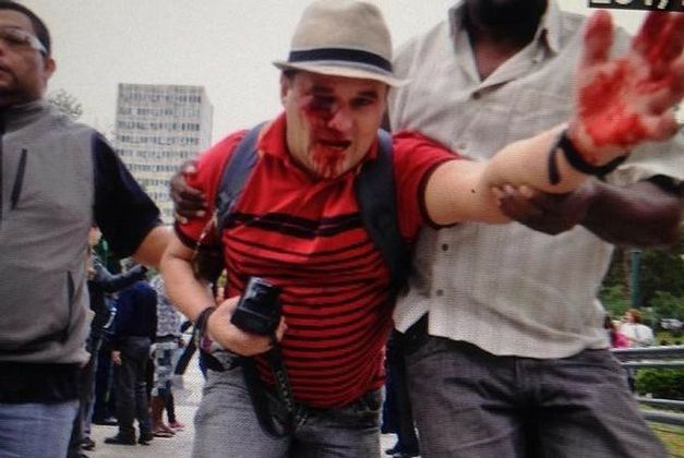 Injured teacher Marcio Henrique dos Santos after he was shot. Photo credit:  Jornal Do Brasil website .