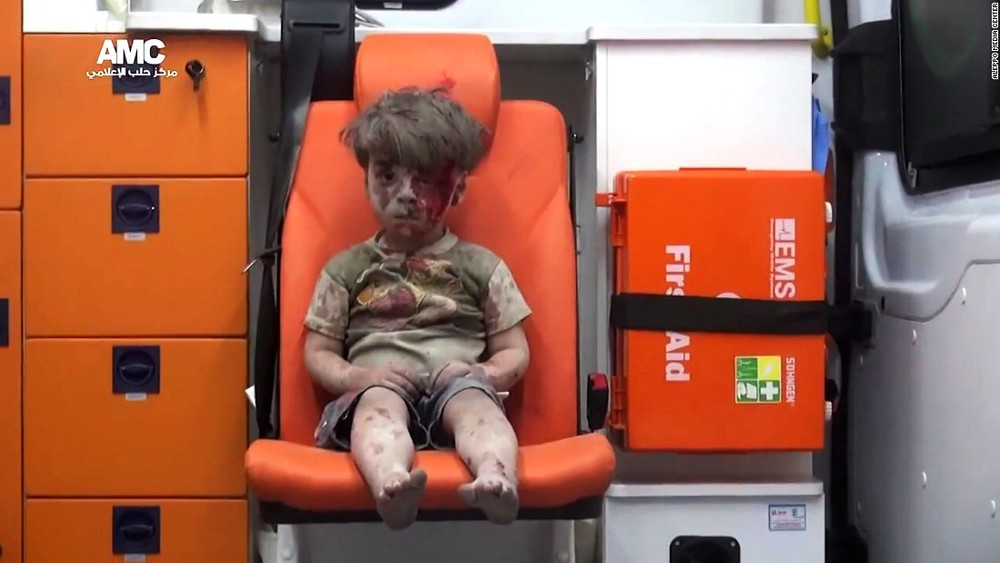 The photo of Omran Daqneesh that went viral. Credit: Aleppo Media Center