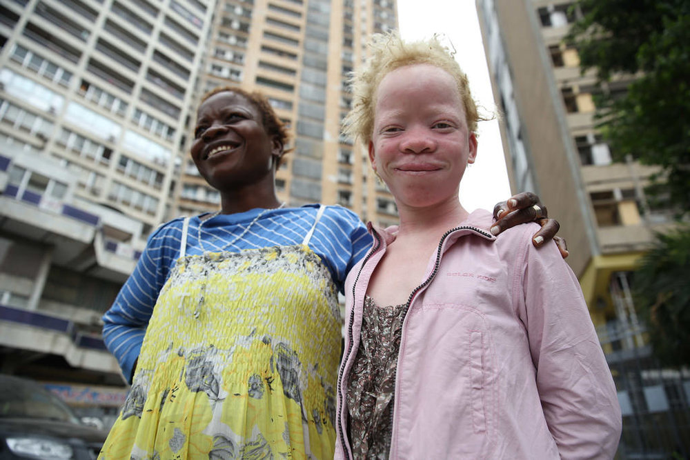 A young albino girl with her mother in Kinshasa, the capital of the Democratic Republic of the Congo Cover credit: Abel Kavanagh/MONUSCO via Flickr
