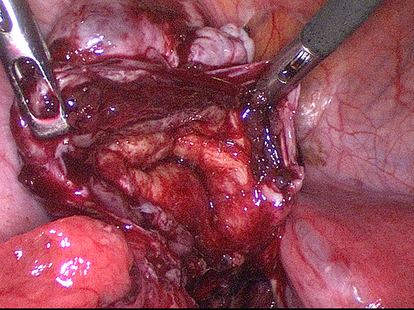 inside-of-endometrioma.jpg