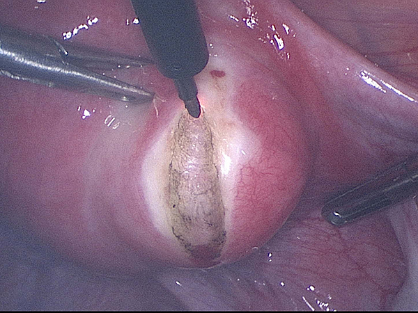 Cutting open the surface of the uterus to get to the intra-mural fibroid