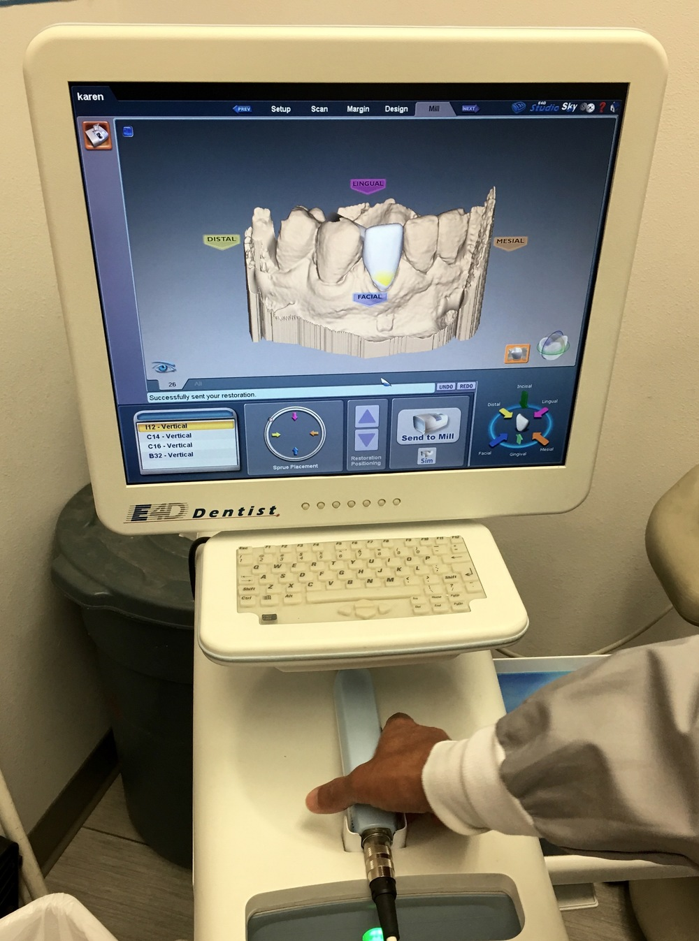 In House Imaging Technology for Custom Crowns