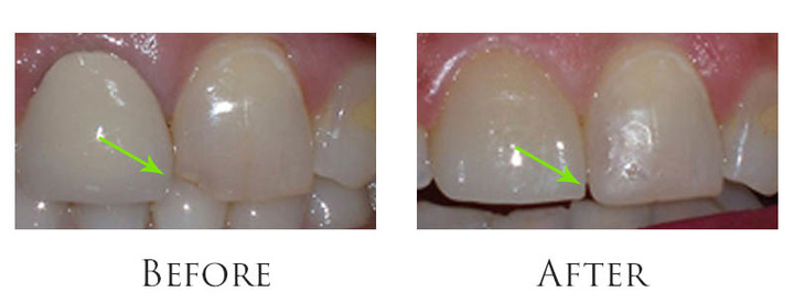 Claremont Dental Institute Patient  Bonding to Repair Chipped Front Tooth