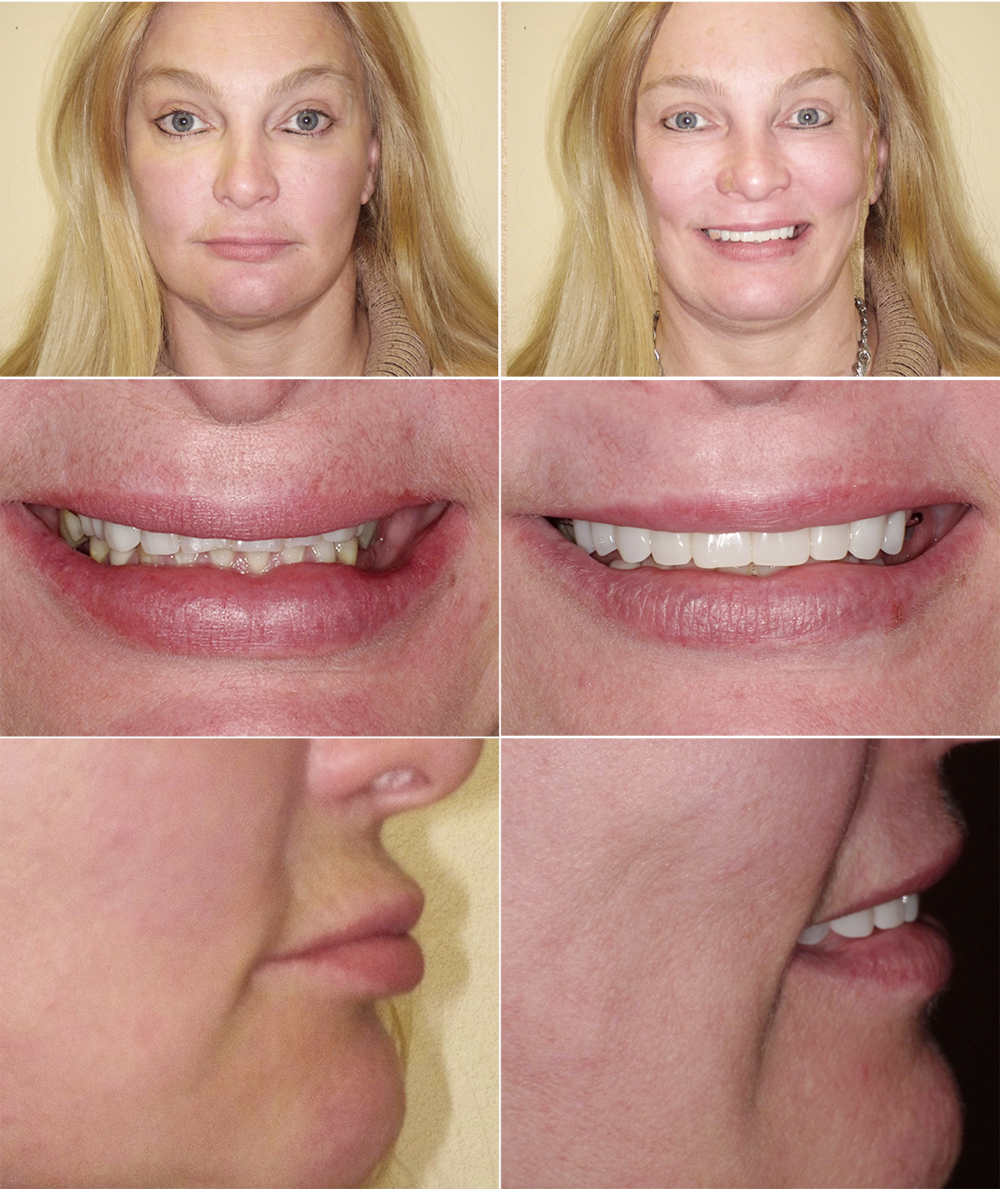 Dental Implant Facelift -