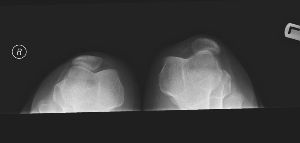 Example of lateral patellar subluxation via  InTech .