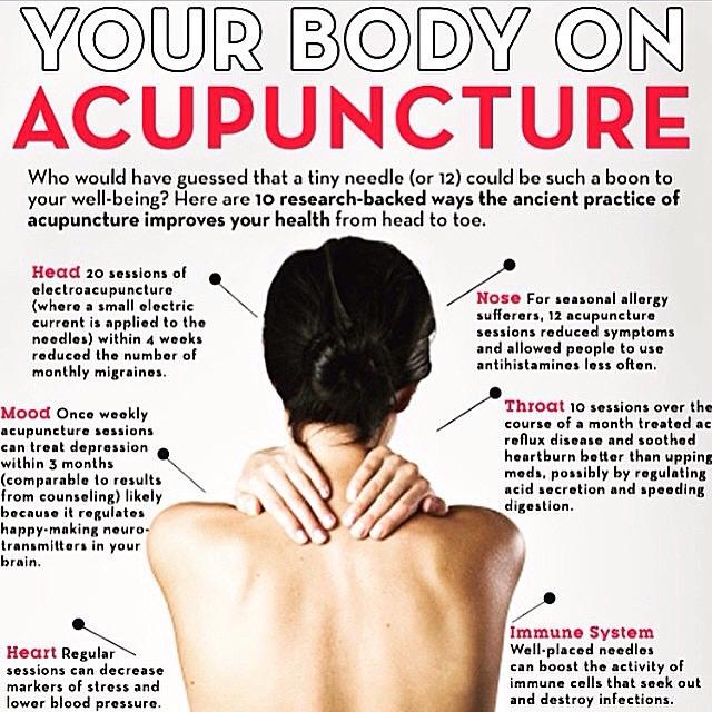 yourbodyonacupuncture.jpg
