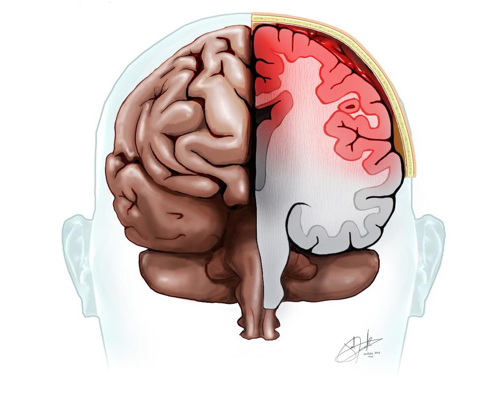 Brain Subarachnoid Hemorrhage half.jpg