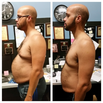Jan A. lost 41 pounds in 5 months, 46 pounds total.